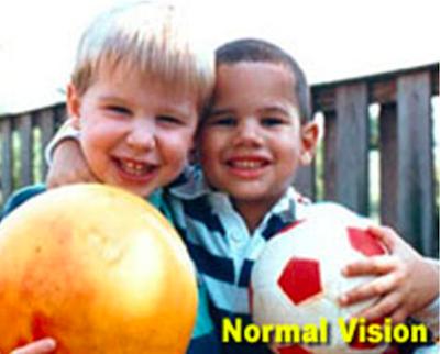 Five Star Diagnostics - Normal Vision